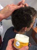 eczema cuir chevelu